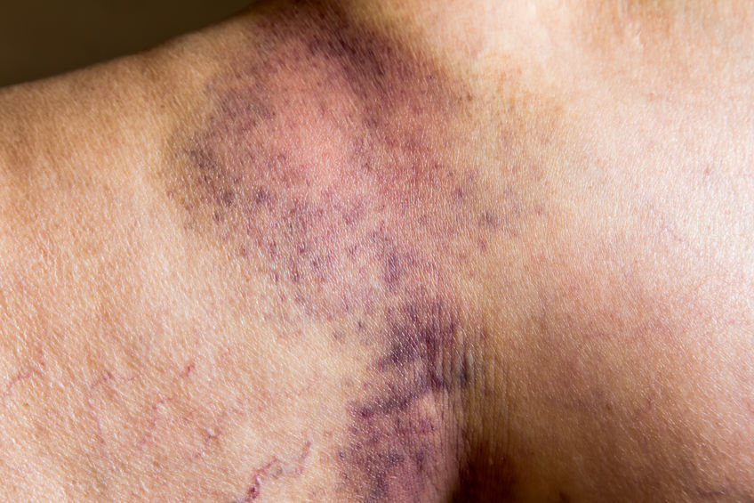 Are Soft-tissue Injuries Dangerous - Spivey Law