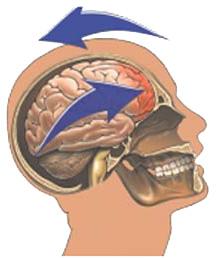 Concussion - copyright Nucleus Medical Media, Inc.
